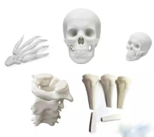 TCT亚洲展:3D打印在骨板设计中的应用